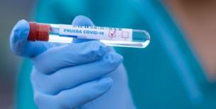 Perú Compras adquirirá 500,000 kits de detección molecular del covid-19